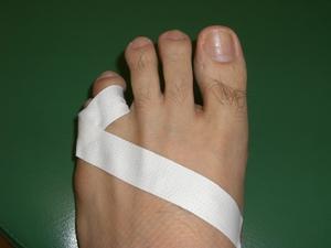 足の小指の骨折 : たんすの角に小指ぶつけた! それ、骨折れてる ...