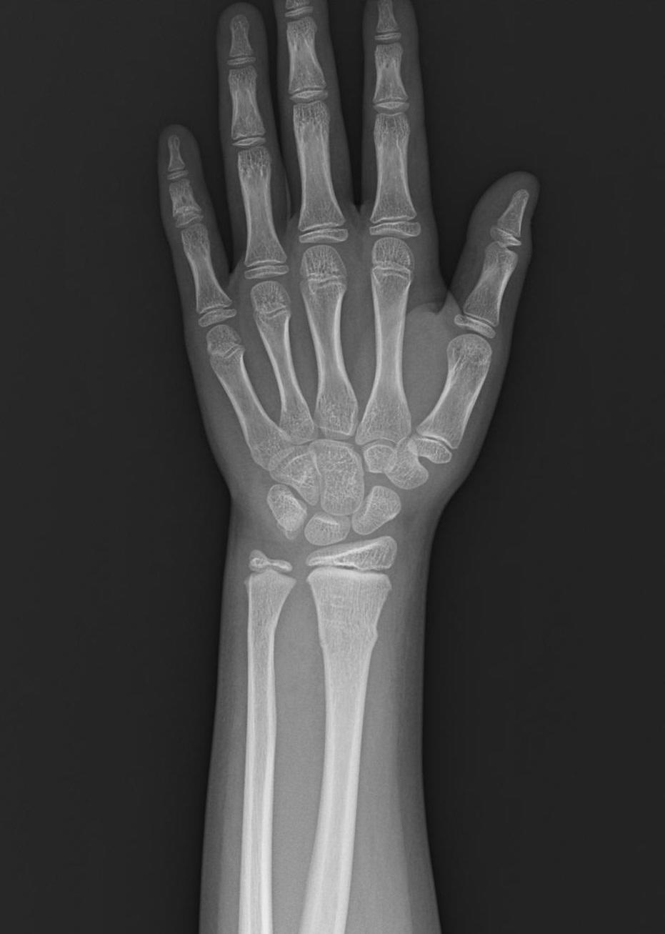 骨 ひび 完治 亀裂骨折 (ひび)の症状,原因と治療の病院を探す